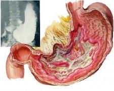 胃溃疡恶化的苗头