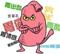胃溃疡OMOM胶囊检查最给力