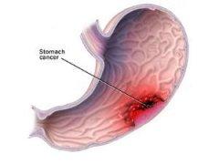 浅表性胃炎可根治