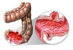 结肠炎明显症状有哪些