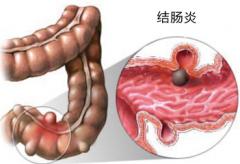 肠炎如何治疗更全面呢