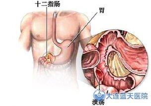 大连胃肠医院专家解释十二指肠炎的危害竟有哪些?