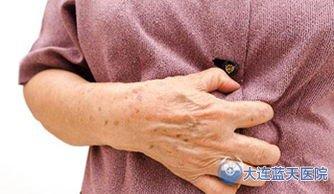 请问大连春柳胃病医院胃肠科专家,得了胃溃疡严重吗?