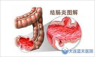 大连胃肠医院能治疗结肠炎吗?